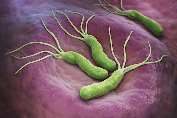 Helicobacter pylori: Chronic Infection