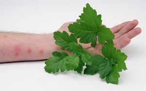 Skin rash on human arm with plant leaves