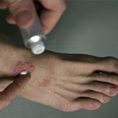 Man putting antibiotic ointment on an infected wound