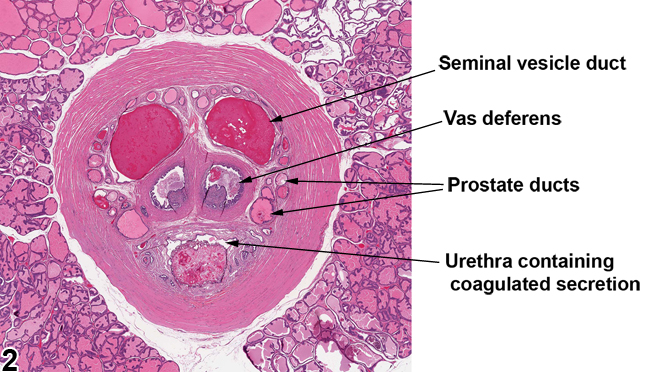 Image of normal ducts in the prostate