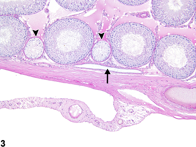 Image of normal rete testis in the testis from a male Harlan Sprague-Dawley rat in a multigenerational reproduction study