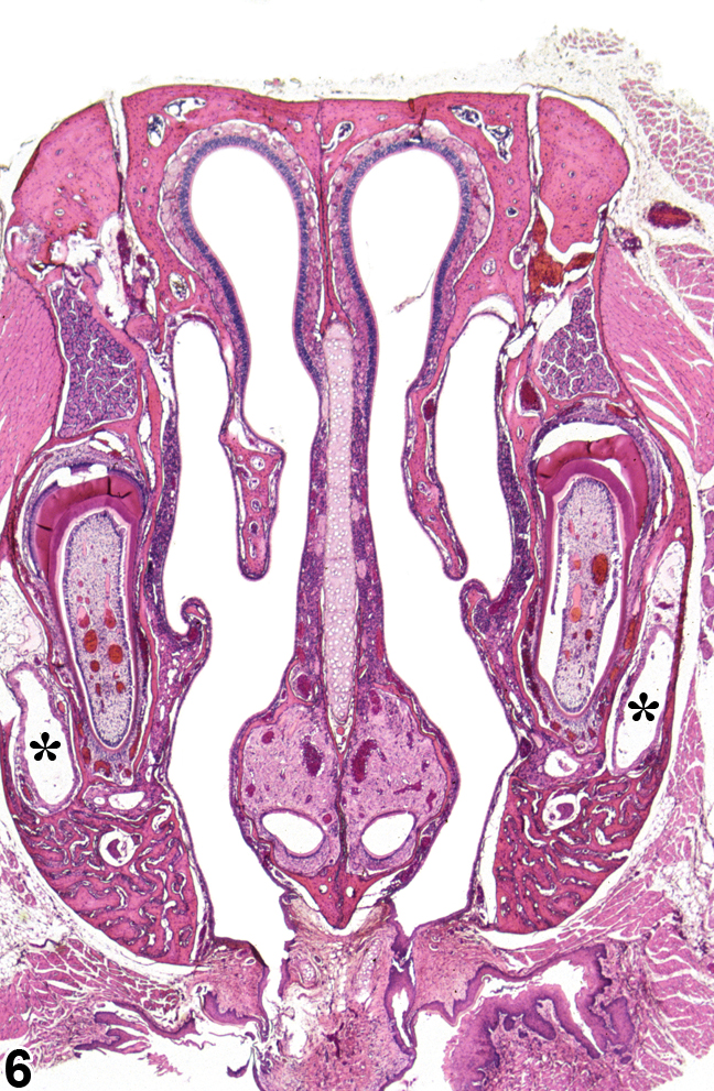 Image of normal nasal cavity (level II) in the nose from a  B6C3F1/N mouse